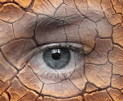 Грижа за очите при сухо око
